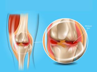Meniscus tear: Causes, Symptoms & Treatment- Dr. Suman Nag