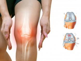 knee cartilage damage - Dr. Suman Nag